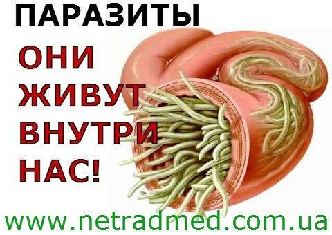 средства от паразитов в организме человека вермокс
