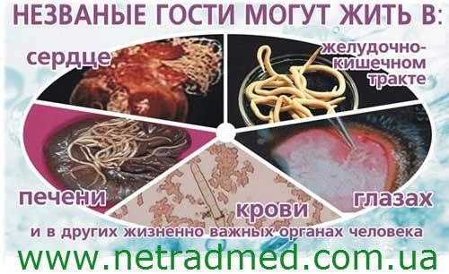 паразиты моче человека